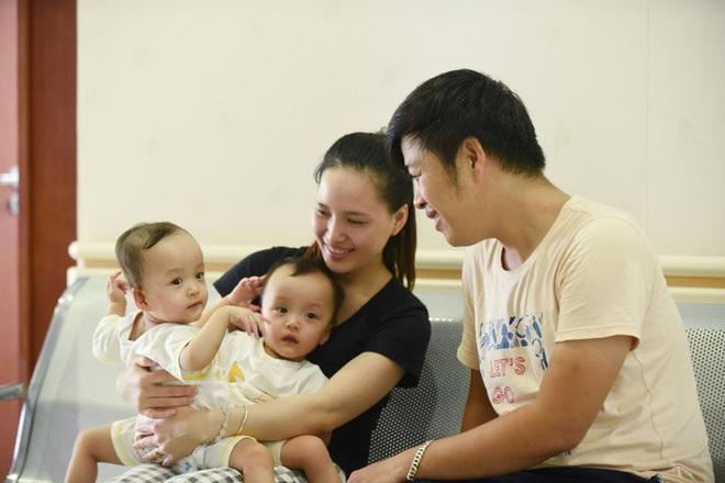 Những hình ảnh cực đáng yêu của hai bé song sinh dính liền trước ca phẫu thuật