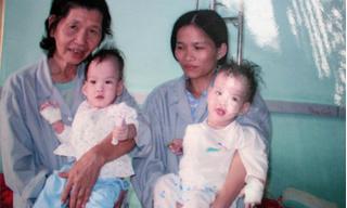 'Trước Song Nhi', đây là những ca mổ tách song sinh đình đám của Việt Nam