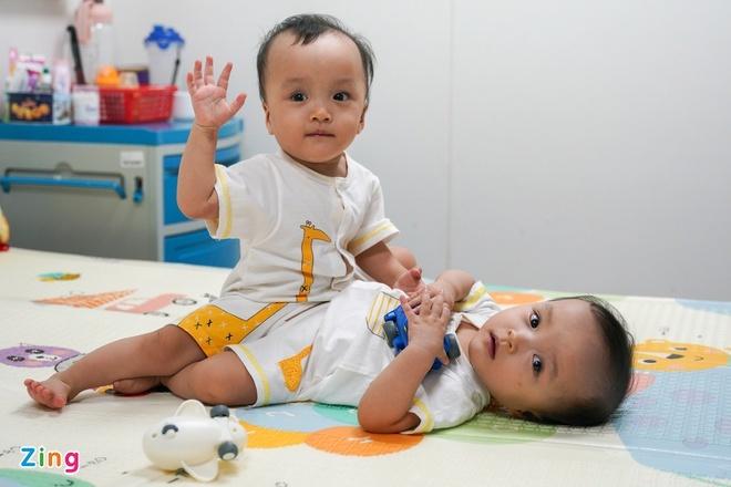 Dân mạng cầu chúc ca phẫu thuật cặp song sinh thành công