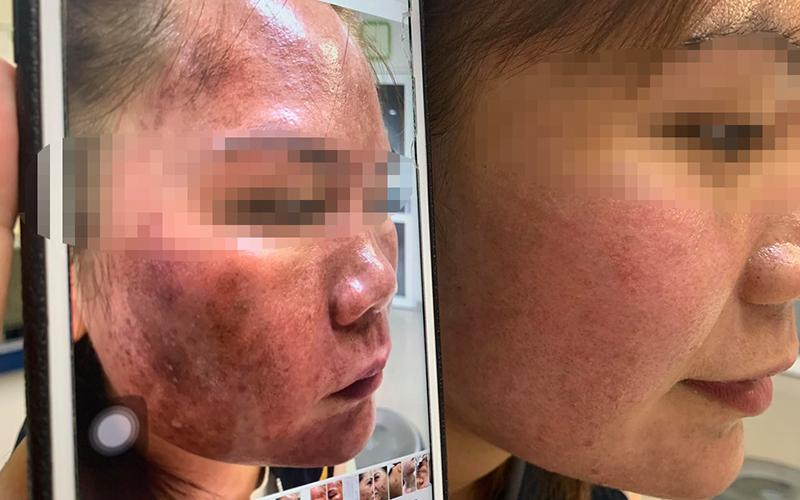 Sử dụng mỹ phẩm lột da trị nám mua trên mạng, người phụ nữ bị bỏng nặng
