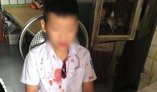 Khởi tố kẻ đánh học sinh lớp 1 để trả thù cho con ở Hòa Bình