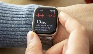 Apple Watch bổ sung tính năng, 'biến' thành chìa khóa ô tô
