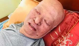 Xót xa hình ảnh HLV Lê Thụy Hải gồng mình chiến đấu với căn bệnh ung thư