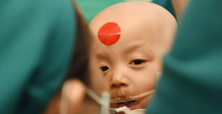 Ngày thứ 2 sau ca mổ, Trúc Nhi - Diệu Nhi đã tỉnh nhưng vẫn còn đau