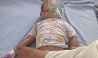 Uống nhầm dầu hỏa, bé 16 tháng tuổi nhập viện khẩn cấp