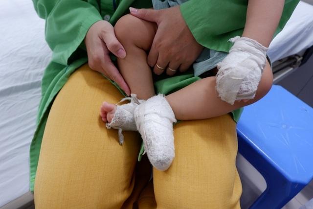 Số lượng trẻ em nhập viện do tai nạn bỏng tăng đột biến