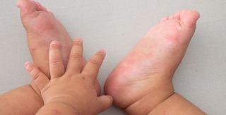 Gia tăng các trường hợp mắc bệnh tay chân miệng tại Đắk Lắk