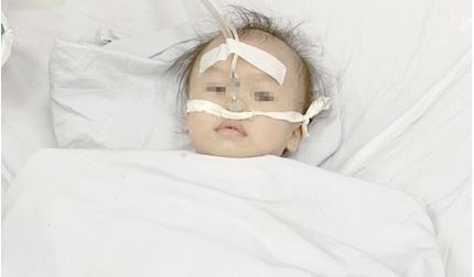 Bé 12 tháng tuổi suýt mất mạng do bị hóc nghẹn chôm chôm