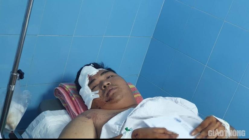 Tài xế có nồng độ cồn, công an khởi tố vụ lật xe ở Quảng Bình làm 15 người chết