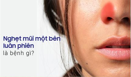 Nghẹt mũi một bên luân phiên là bệnh gì?