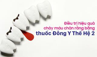Điều trị hiệu quả chảy máu chân răng bằng thuốc Đông Y Thế Hệ 2