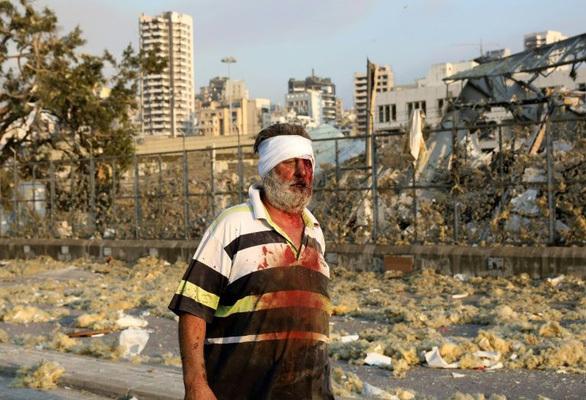 Cận cảnh, vụ nổ kinh hoàng tại Lebanon khiến 4000 người thương vong. 7