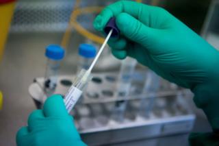 Kết quả xét nghiệm SARS-CoV-2 của 34 trường hợp trên địa bàn Hà Nam