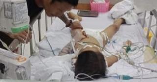 Xác định nguyên nhân bé trai 7 tuổi tử vong sau khi mổ lấy đinh nẹp tay