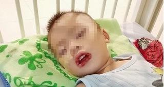 Bé trai bị loét đường tiêu hóa do uống nhầm thuốc tẩy bồn cầu