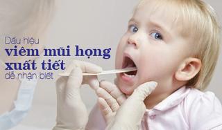 Dấu hiệu viêm mũi họng xuất tiết dễ nhận biết và cách điều trị