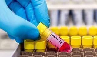 Malaysia phát hiện chủng virus corona có khả năng lây nhiễm gấp 10 lần