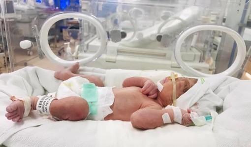 Hy hữu: Sản phụ sinh con khoẻ mạnh dù vị vỡ tử cung ở tuần thứ 25 thai kỳ