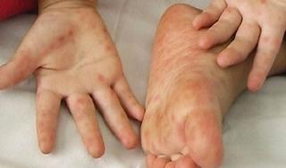 Bác sĩ chỉ rõ 5 biểu hiện trên da tay của người mắc Covid-19