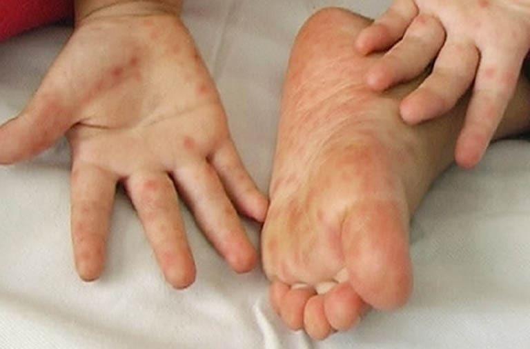 5 dấu hiệu điển hình trên da tay của người mắc Covid-19