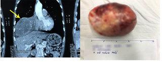 Phẫu thuật lấy khối u khổng lồ trong lồng ngực khiến người đàn ông