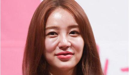 Fan tiếc nuối bởi khuôn mặt 'biến dạng' của ngôi sao Yoon Eun Hye ở tuổi 36