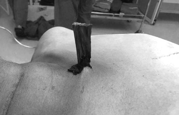 Người đàn ông nguy kịch do bị thanh gỗ đâm xuyên ngực