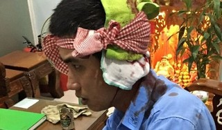 Nhân viên Trạm BOT Ninh Xuân bị hành hung phải nhập viện
