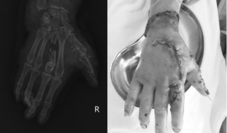 Người phụ nữ bị dập nát bàn tay sau khi sử dụng máy xay đá tại nhà