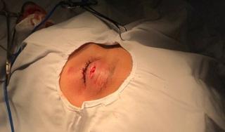 Bé trai 9 tuổi bị lồi nhãn cầu mắt trái do ngã vào tay cầm xe đạp