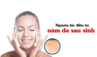 Nguyên tắc điều trị nám da sau sinh cho da sáng mịn màng