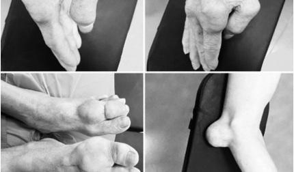 'Sống chung' với bệnh gout suốt 20 năm, tứ chi của người đàn ông bị biến dạng