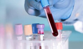Thêm 3 ca mắc Covid-19 mới, Việt Nam có 1.063 bệnh nhân