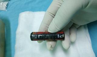 Lấy viên pin bị ăn mòn ra khỏi âm đạo bé gái 7 tuổi