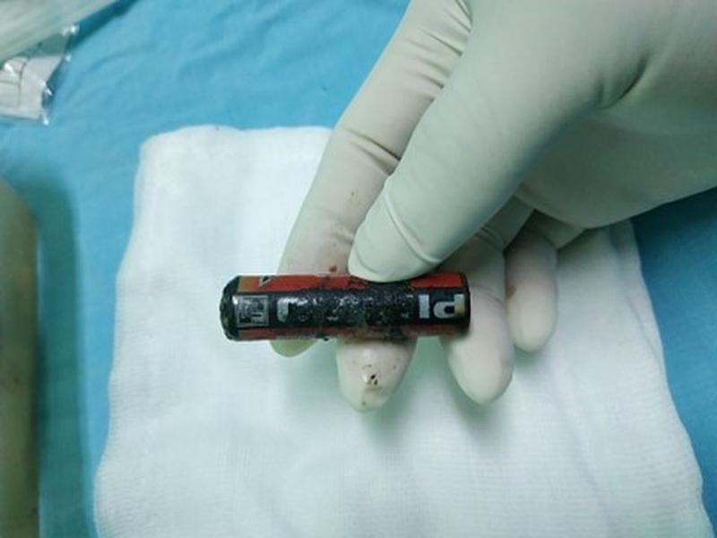 Viên pin bị ăn mòn nằm trong âm đạo của bé gái 7 tuổi