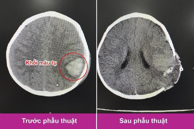 Trượt chân ngã, bé trai 11 tháng tuổi bị kéo đâm trọng thương vùng đầu