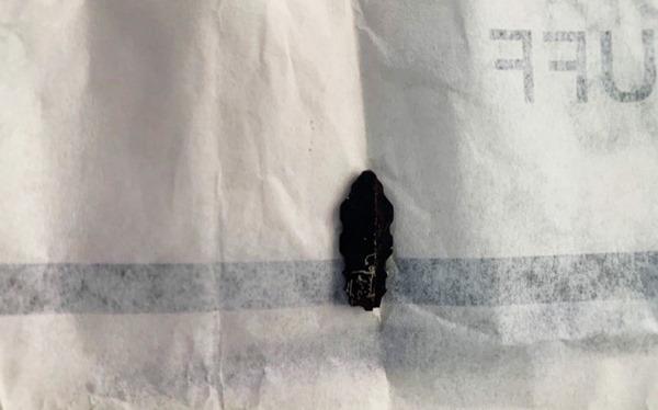 Đầu chìa khóa sắt hoen rỉ nằm trong tai thanh niên suốt 1 năm