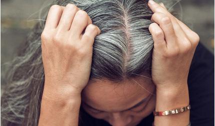 Nguyên nhân và cách điều trị bệnh bạc tóc sớm