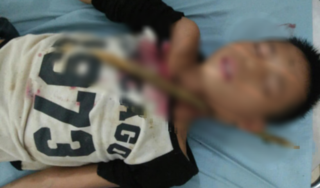Bé trai 12 tuổi bị cành cây đâm xuyên cổ sau khi ngã từ trên cao xuống