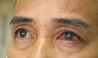 Người đàn ông suýt mù mắt do bị mảnh vôi vữa bắn vào