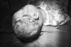 Bé trai 2 tuổi bị chó cắn gây tổn thương nặng vùng mặt và đầu
