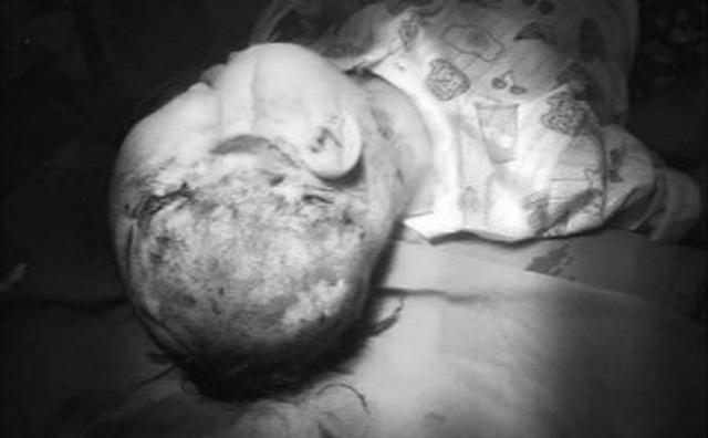 Bé trai 2 tuổi tại Thanh Hóa bị chó cắn gây tổn thương nặng vùng mặt và đầu