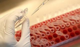 Sốt xuất huyết có thể tạo ra hệ miễn dịch ngừa bệnh Covid-19