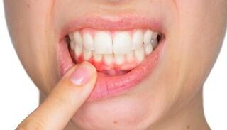 Những vấn đề về răng miệng 'tố cáo' sức khỏe bạn đang có vấn đề