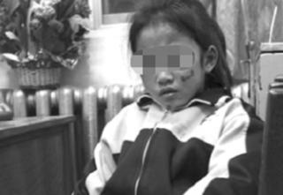 Phẫn nộ cô giáo dùng thước đánh vào mặt bé gái 5 tuổi suốt nhiều ngày