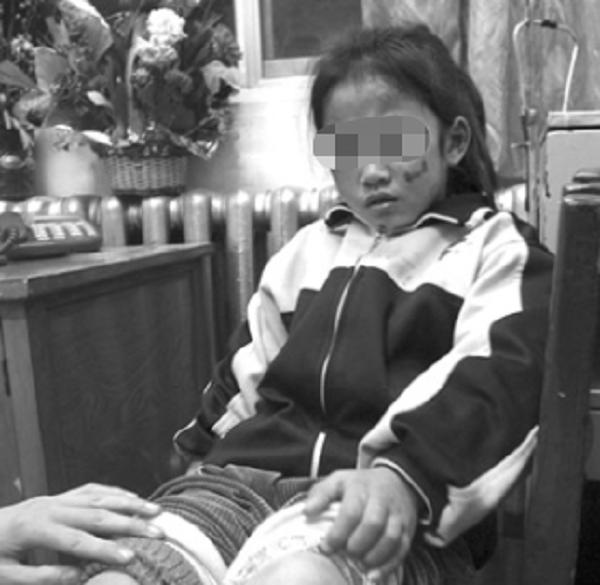 Phẫn nộ cô giáo dùng thước đánh vào mặt bé gái 5 tuổi suốt 8 phút