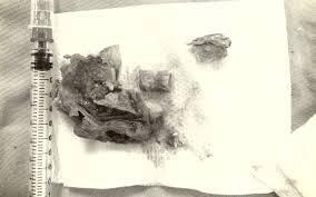 Ăn thịt gà, cụ ông 102 tuổi bị mảnh xương găm ngang thực quản