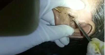 Ổ giòi 30 con sống trong tai cụ bà 88 tuổi