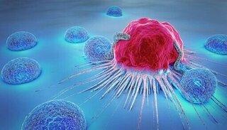 Người phụ nữ mắc bệnh ung thư do sai lầm không ngờ tới