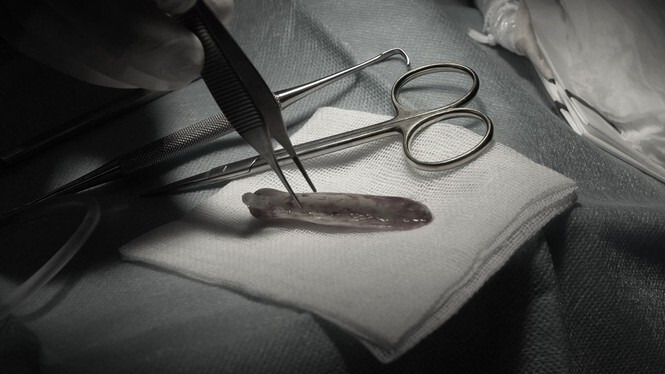 Người phụ nữ đứt lìa trụ mũi, hoại tử nặng do tin lời bác sĩ Sài Gòn dởm